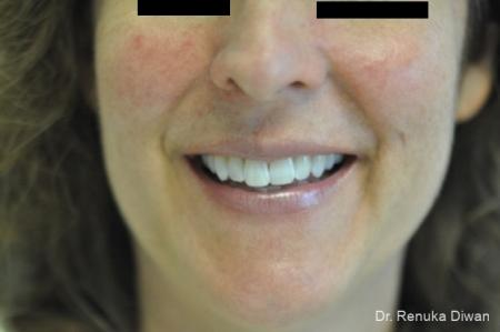 Laser For Veins And Redness: Patient 11 - Before Image 1