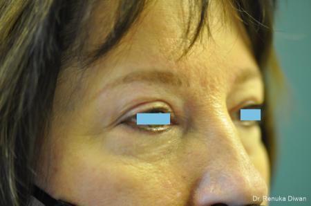 Blepharoplasty: Patient 3 - After Image 2