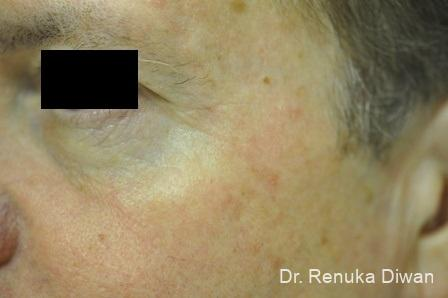 Botox-cosmetic-for-men: Patient 5 - After Image
