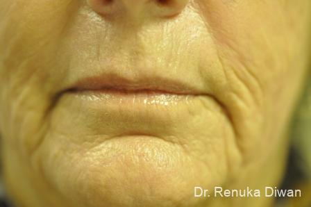 Laser Skin Resurfacing: Patient 7 - After Image 2
