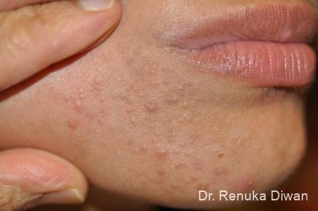 Chemical Peel: Patient 4 - Before Image 1