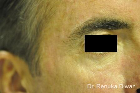 Botox-cosmetic-for-men: Patient 7 - After Image