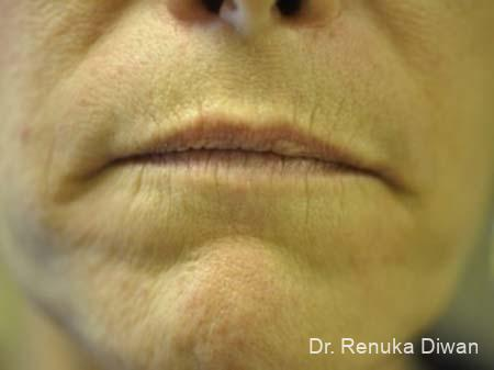 Lips And Mouth: Patient 4 - Before Image