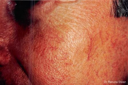Laser For Veins And Redness: Patient 3 - Before Image