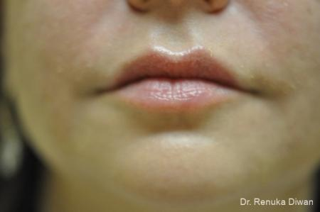 Lips And Mouth: Patient 12 - After Image 1