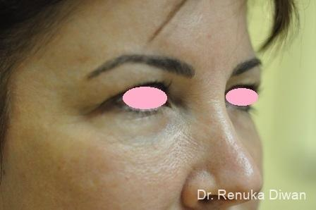 Blepharoplasty: Patient 2 - Before Image 2