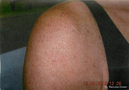 Lasers For Brown Spots: Patient 5 - After Image 1