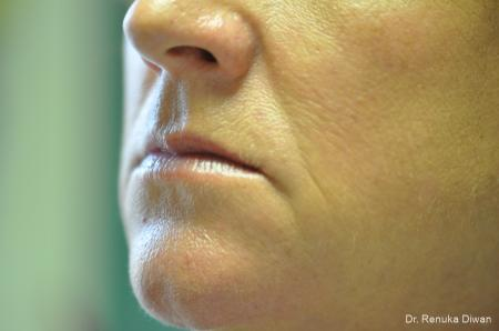 Microneedling: Patient 4 - Before and After Image 2