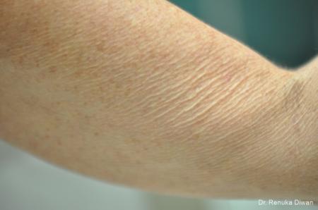 Skin Tightening: Patient 10 - Before Image