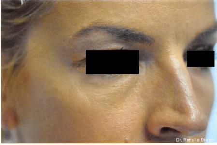 BOTOX® Cosmetic: Patient 23 - After Image 2