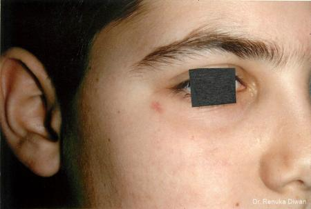 Laser For Veins And Redness: Patient 19 - Before Image 1