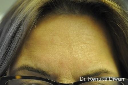 Forehead Creases: Patient 8 - Before Image
