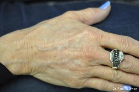 Hand Augmentation: Patient 1 - After Image 1