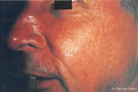 Laser For Veins And Redness For Men: Patient 5 - After Image 1