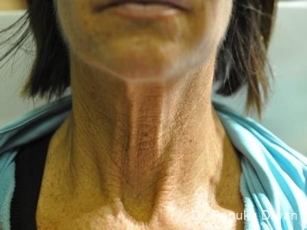 Skin Tightening: Patient 5 - Before Image 1