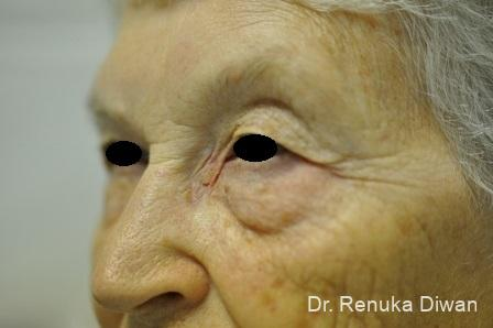 Blepharoplasty: Patient 11 - Before Image 1