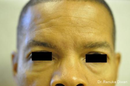Dark Circles: Patient 3 - Before Image 1