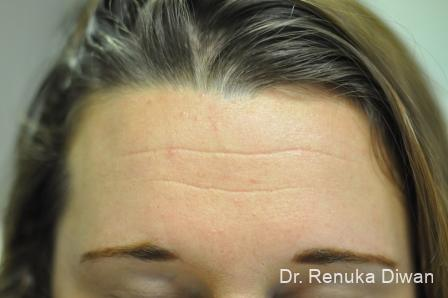 Forehead Creases: Patient 7 - Before and After Image 2