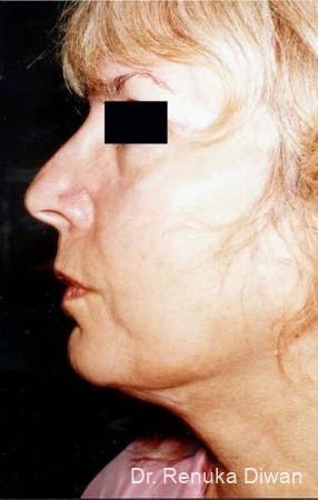 Liposuction: Patient 3 - After Image 1