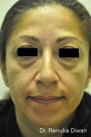 Loss Of Fullness: Patient 11 - Before Image