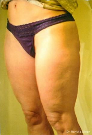 Cellulite Reduction: Patient 1 - Before and After Image 2