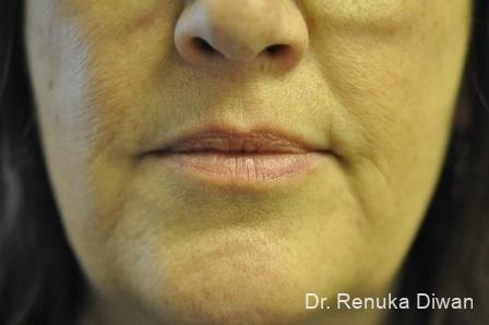 Lip Augmentation: Patient 12 - Before Image 1