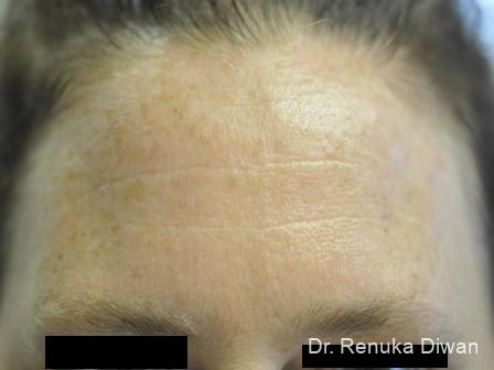 BOTOX® Cosmetic: Patient 11 - Before Image