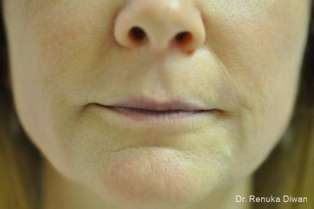 Lip Augmentation: Patient 8 - Before Image