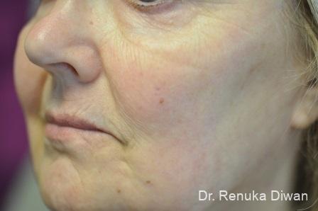 Laser Skin Resurfacing - Face: Patient 9 - After Image 1