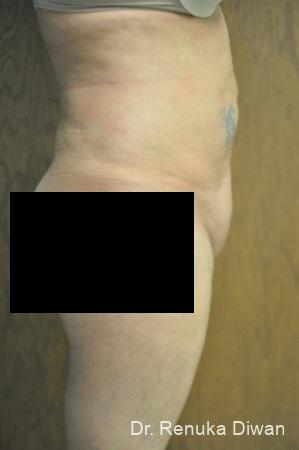 Liposuction: Patient 14 - After Image 1