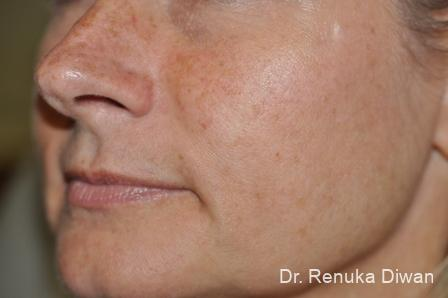 Lasers For Brown Spots: Patient 11 - Before and After Image 2