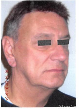 Facelift--neck-lift-for-men: Patient 1 - Before Image