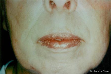 Laser Skin Resurfacing - Face: Patient 5 - After Image 1