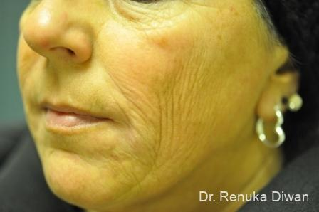 Laser Skin Resurfacing: Patient 2 - Before Image