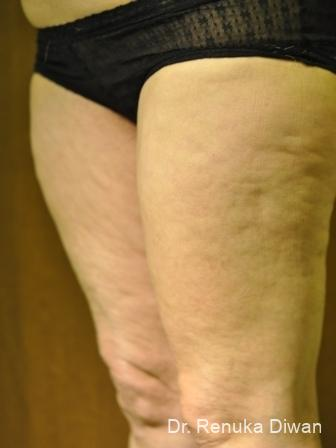 Cellulite Reduction: Patient 2 - Before Image