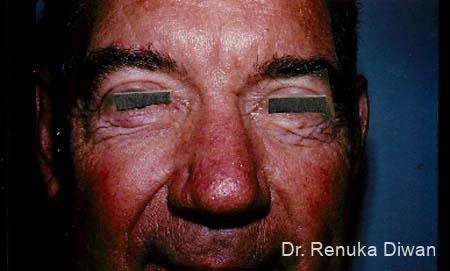 Blepharoplasty-for-men: Patient 1 - After Image