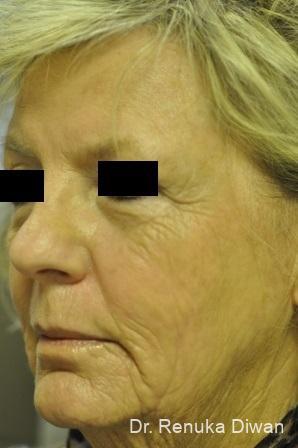 Laser Skin Resurfacing - Face: Patient 6 - After Image 1