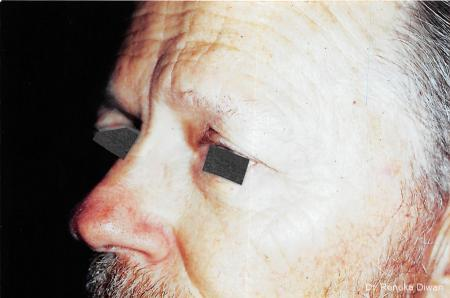 Blepharoplasty-for-men: Patient 3 - Before Image
