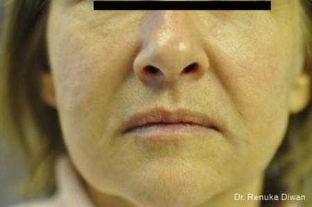 Juvéderm® XC: Patient 3 - After Image