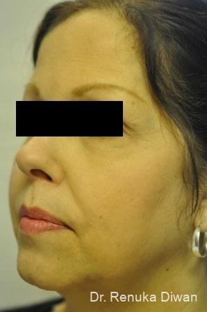 Skin Tightening: Patient 1 - After Image