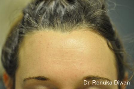 Forehead Creases: Patient 7 - After Image 2