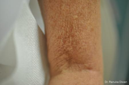 Skin Tightening: Patient 12 - Before Image 1