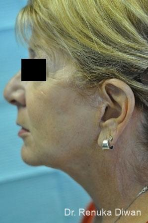 Facelift & Neck Lift: Patient 1 - After Image 2