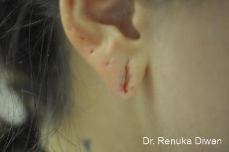 Earlobe Surgery: Patient 6 - Before and After Image 2