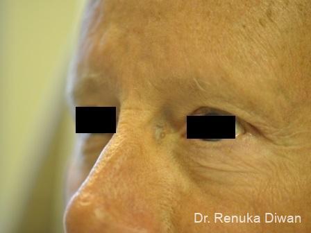 Blepharoplasty-for-men: Patient 2 - After Image