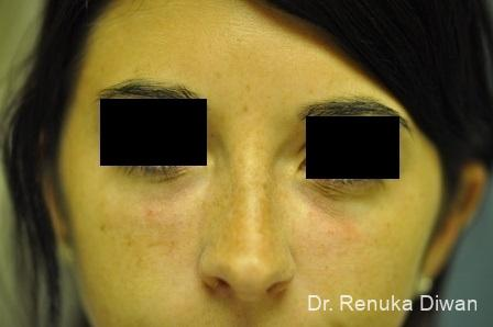 Dark Circles: Patient 4 - After Image