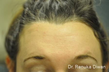 Forehead Creases: Patient 7 - After Image