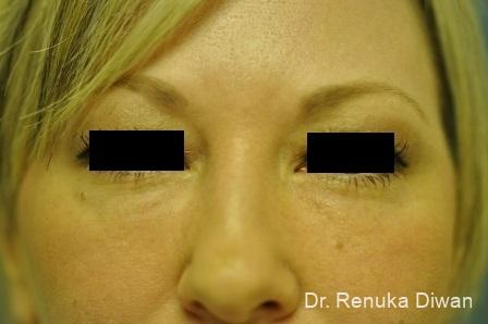Dark Circles: Patient 7 - After Image 1