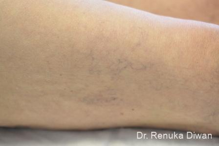 Veins On Legs: Patient 4 - Before Image