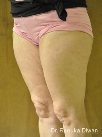 Cellulite Reduction: Patient 2 - After Image 1